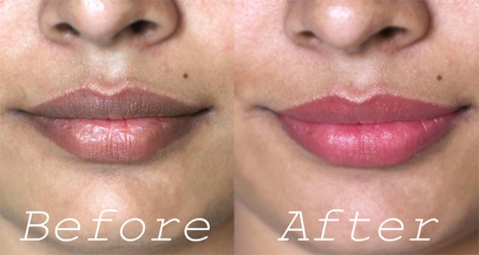 Trick to Whiten Dark Lips NATURALLY!