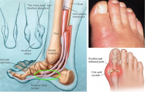 3 Warning Signs Your Feet Send About Your Health That You Should Never Ignore!