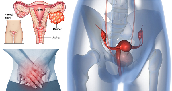 5 Warning Signs Of Ovarian Cancer Everyone Should Know