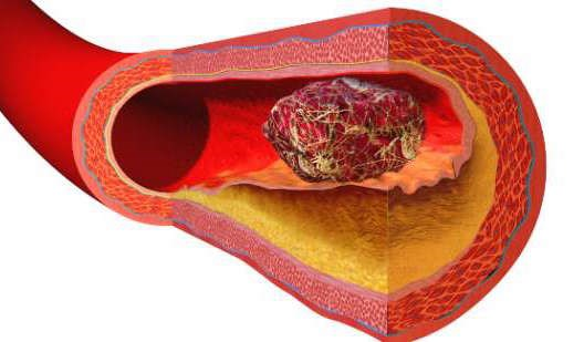 How to Prevent a Blood Clot Naturally