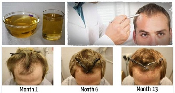 It Only Takes One Ingredient To Save And Regrow Your Hair