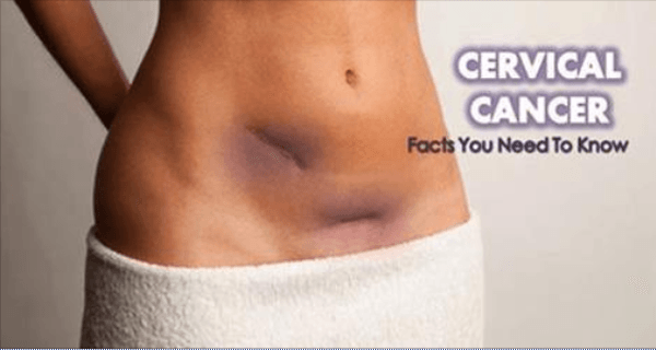 Signs of Cervical Cancer That Women Need to Observe