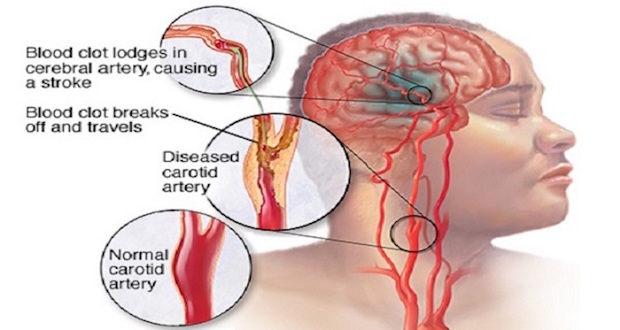 Signs of an Early Stroke