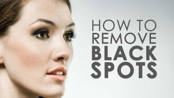 Treat Your Black Spots with These 4 Awesome Home Remedies