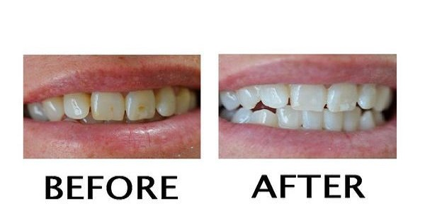 Amazing Recipe That Will WHITEN Your Teeth In Only 2 Minutes