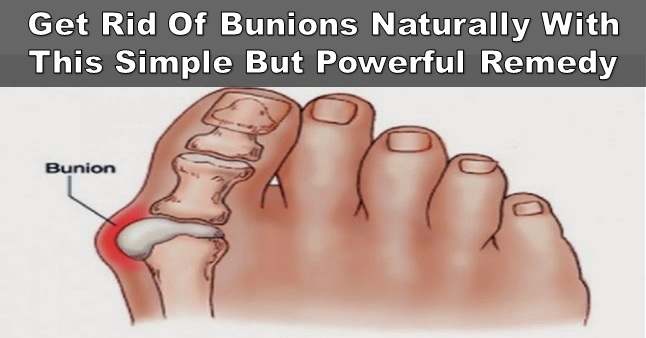 Best Home Remedies To Get Rid Of Feet Bunions