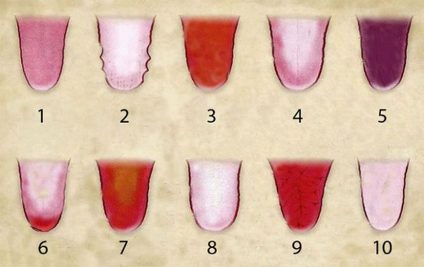 Did You Know That The Color Of Your Tongue Can Tell A Lot About Your Health Condition