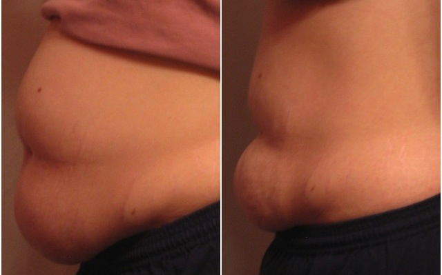Get Rid Of Sagging Belly Skin In 10 Days!