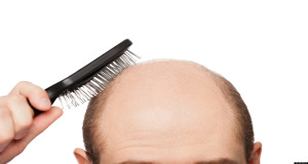 Recipe for Baldness - Hair Begins to Grow After Two Days!