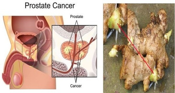 Root Of This Herb Can Help You To Win The Battle Against Prostate Cancer!
