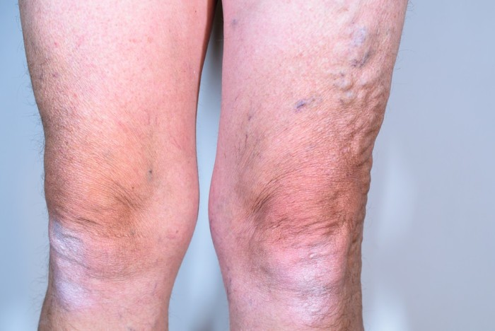 Simple Ways To Fight Spider And Varicose Veins