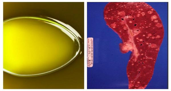 This OIL Kills Cancer Cells Within MINUTES!