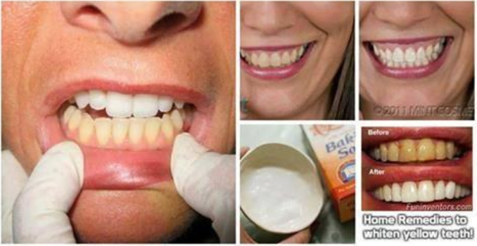 3 Most Powerful Home Remedies For Yellow Teeth That Works Wonder In Few Days!