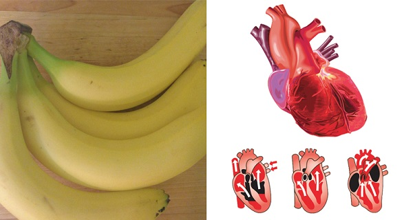 5 Health Problems That Can Be Healed WIth Bananas INSTEAD of Medication