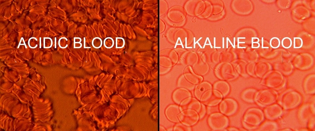 How Cancer is Mostly Caused by The Intake of Acidic Food