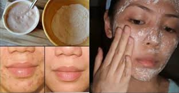 Magically Remove Stains, Acne Scars And Wrinkles With This Face Mask Just After The Second Use!