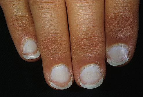 Read the Secrets Your Nails Might Reveal