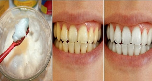 The Best Home Method to Whiten Your Teeth, Remove Stains and Tartar and Prevent Plaque Buildup