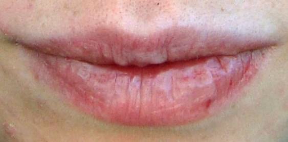 The One Ingredient Remedy That Cured My Dry, Painful, Cracked Lips FOR GOOD!