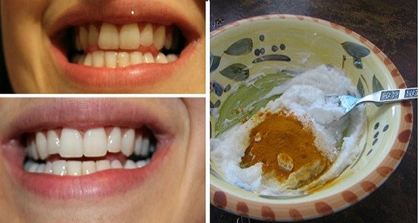 This-Turmeric-Anti-Inflammatory-Paste-Will-Reverse-Gum-Disease-Swelling-And-Kill-Bacteria