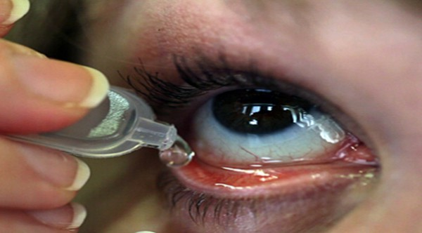 here-is-how-to-relieve-irritation-by-using-these-easy-homemade-eye-drops