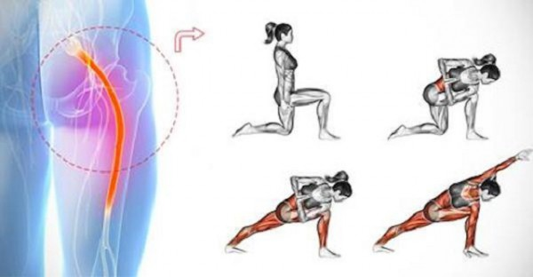treat-chronic-sciatica-pain-with-easy-yoga-exercises