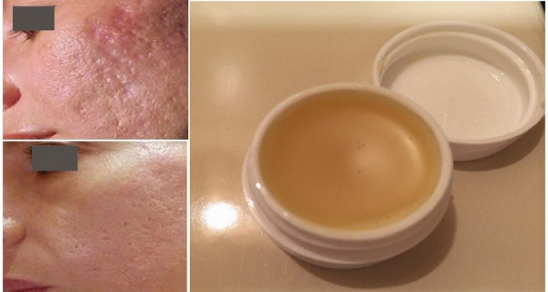 unique-homemade-cream-to-gets-rid-of-scars-completely-within-2-weeks