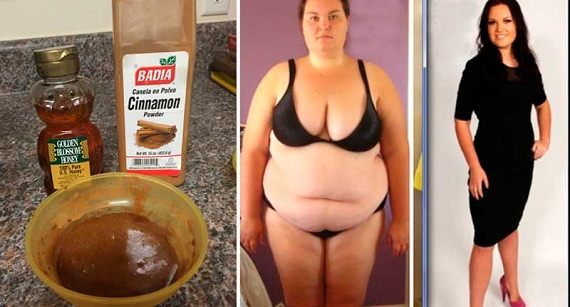 Remedy for burning the abdominal fat