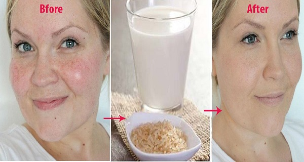 she-washes-her-face-with-boiled-rice-water-twice-a-week-for-a-month-the-end-result-unbelievable