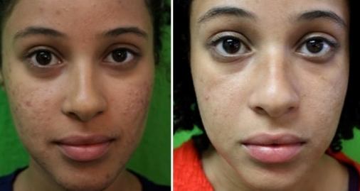 Remove and prevent pimple marks acne scars and dark spots fast how to remove pimple marks acne scars and dark spots fast ccuart Image collections