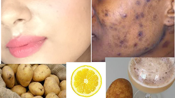 Image result for 3 BEST TRICK TO REMOVE DARK SPOTS AND SCARS FROM THE FACE