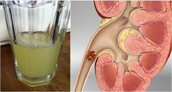 Image result for SAY GOODBYE TO YOUR KIDNEY STONES WITH ONLY HALF A CUP OF THIS DRINK
