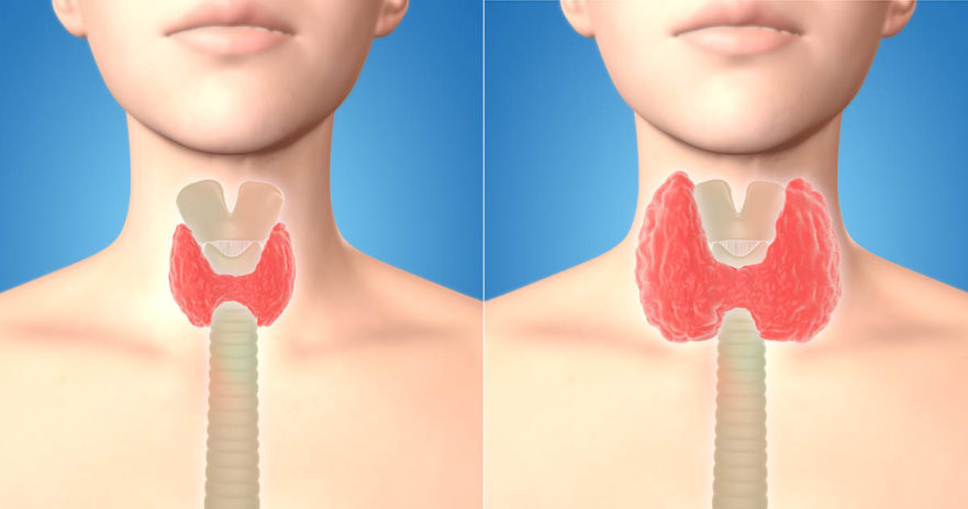 Image result for Thyroid Cancer Screening Unnecessary; Risks Outweigh Benefits