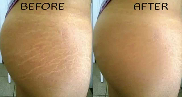 Image result for HOW TO REMOVE STRETCH MARKS NATURALLY WITHIN 6 WEEKS