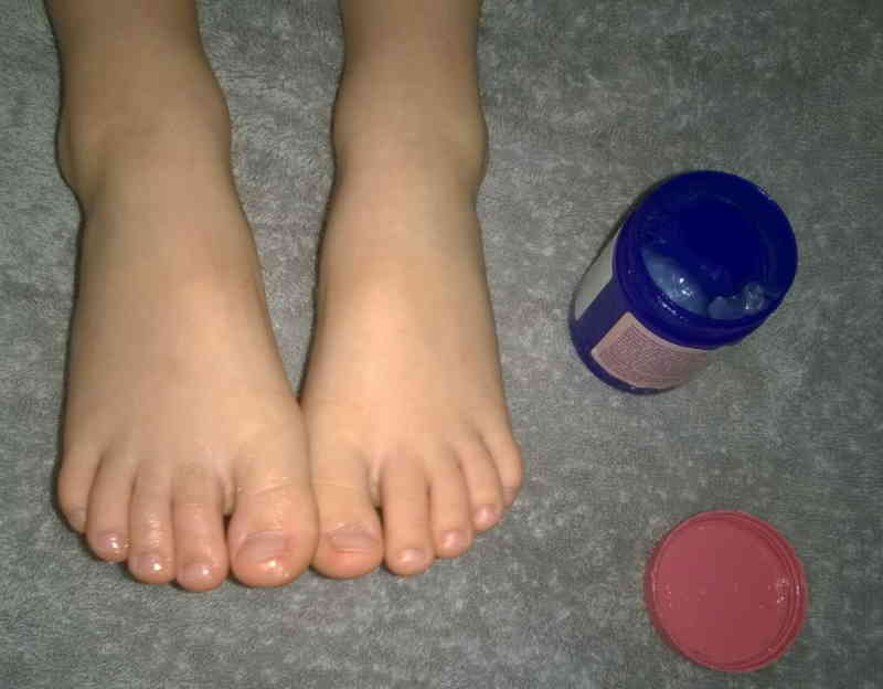 Image result for APPLYING VICKS ON YOUR FEET CAN CLEAR COUGH IN AN INSTANT!