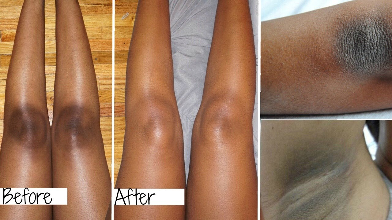 Image result for HOW TO WHITEN DARK ELBOWS, UNDERARMS AND KNEE EASILY AT HOME !!!