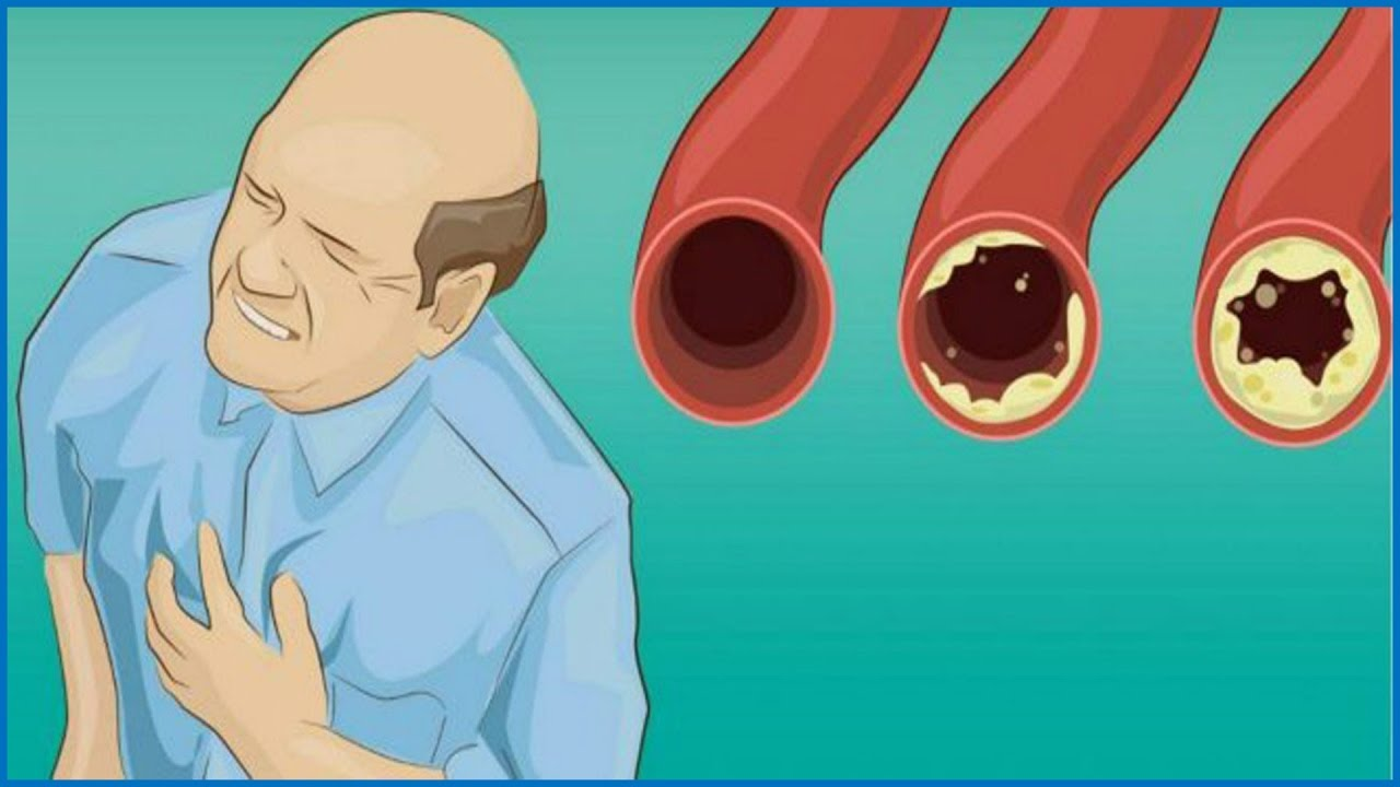 10 FOODS THAT YOU SHOULD EAT DAILY FOR CLEAN ARTERIES க்கான பட முடிவு