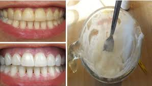 Image result for How To Get Rid Of Plaque and Whiten Your Teeth Without Expensive Treatments