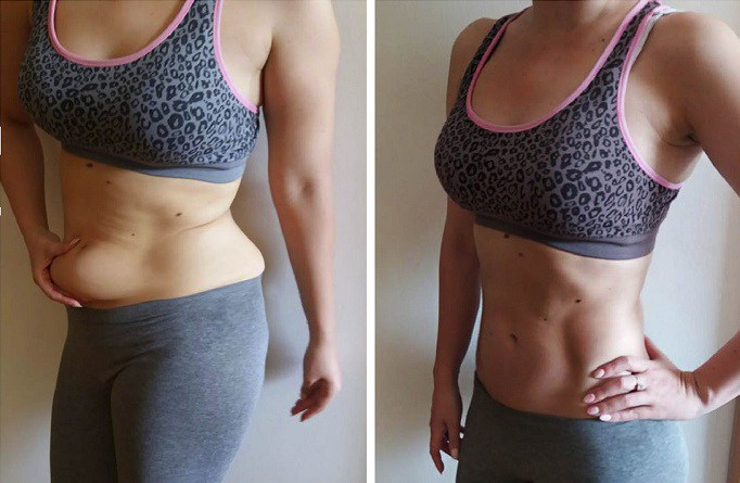 Image result for 6 WAYS TO LOSE FAT AROUND THE STOMACH IN 10 DAYS