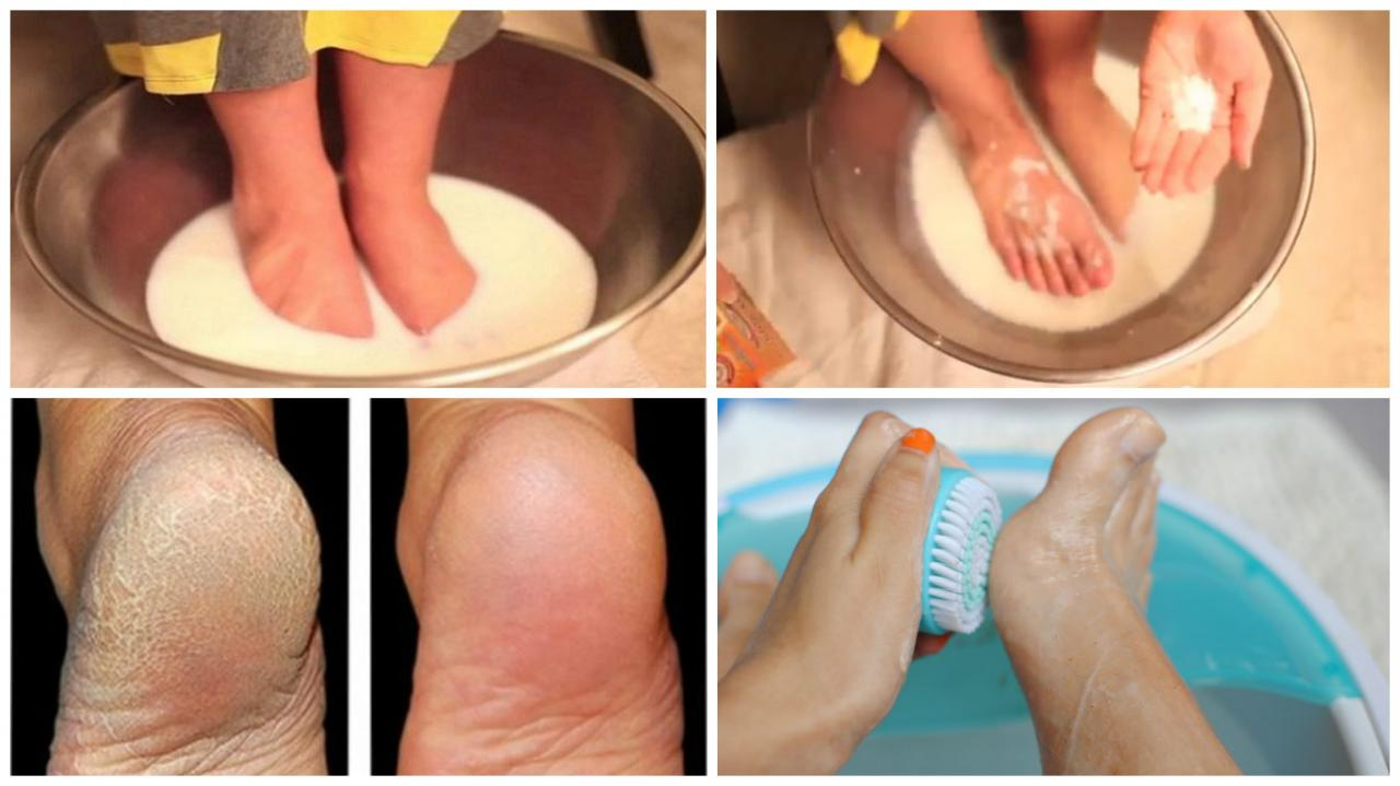 Image result for Don't Spend Your Money On Pedicure: Use Two Ingredients From Your Kitchen and Make Your Feet Look Nice