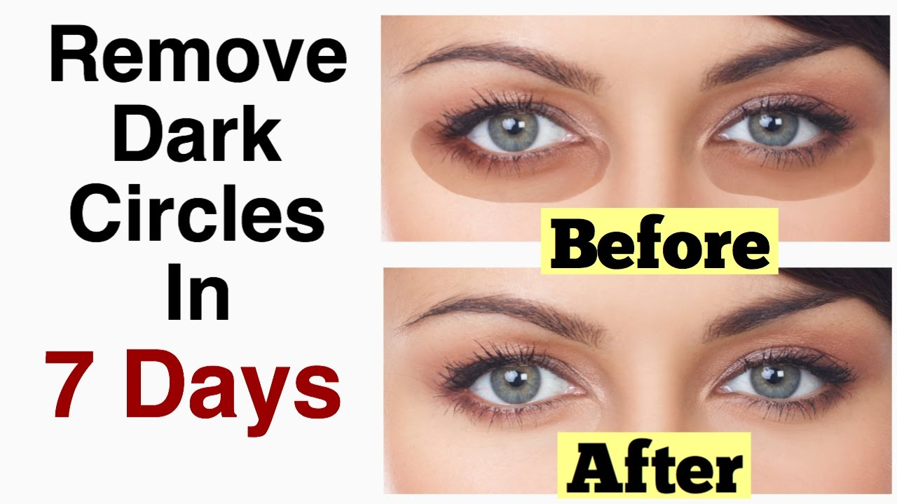 Image result for 7 NATURAL REMEDIES FOR TREATING DARK UNDER EYE CIRCLES